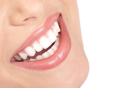 halitosis, algo más que un problema cosmético