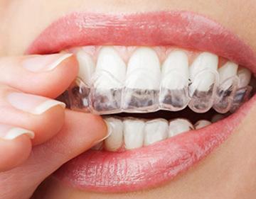 todo lo que debes saber sobre la ortodoncia